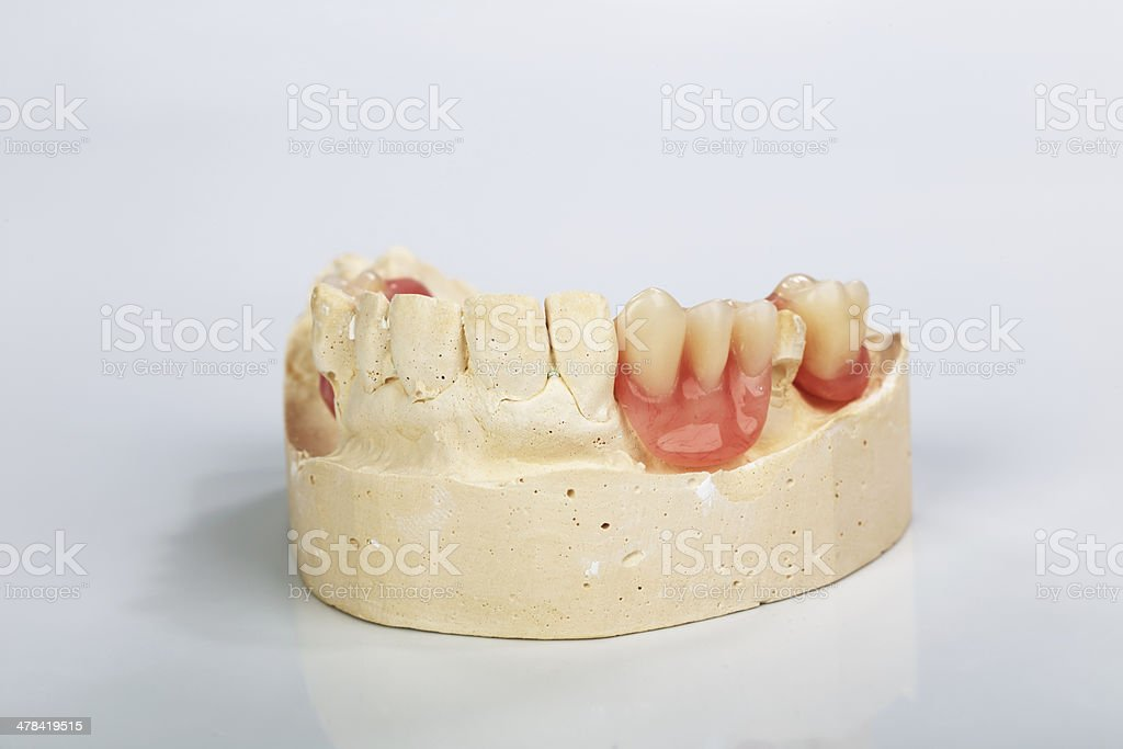 partial denture mounted on a plaster study model stock photo