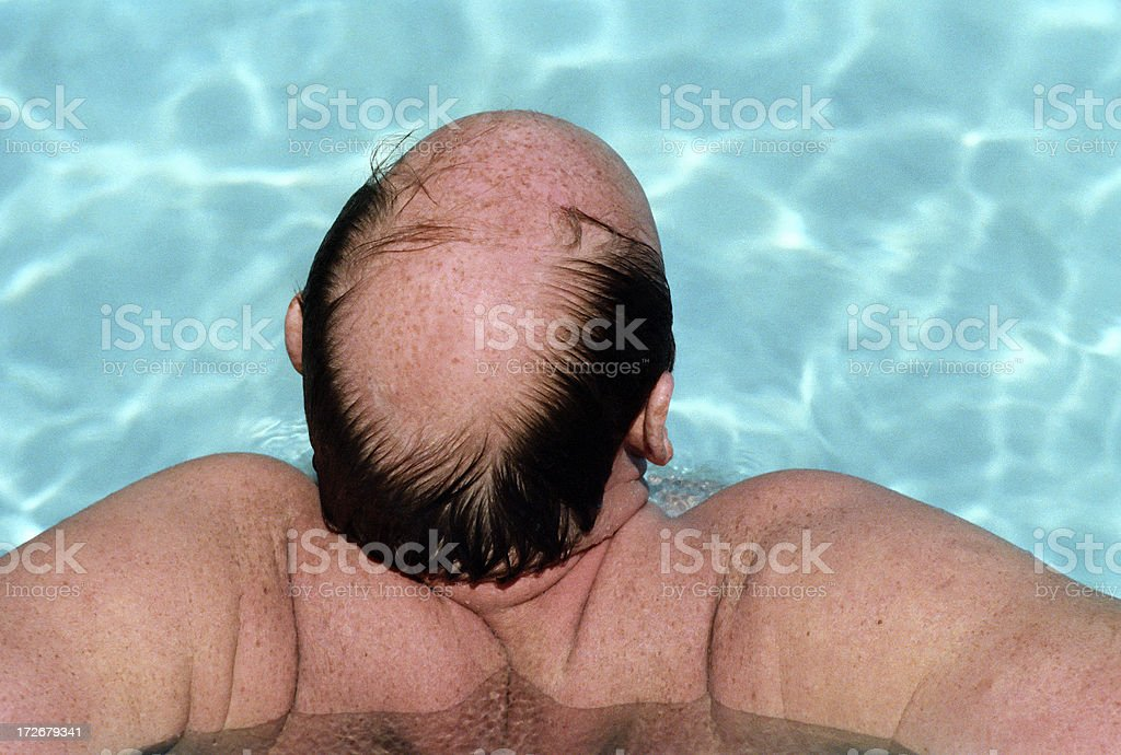 Past Prime: Male Pattern Baldness royalty-free stock photo