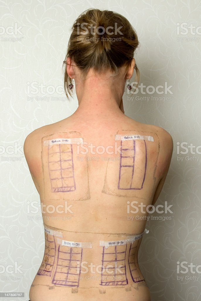 patch testing stock photo
