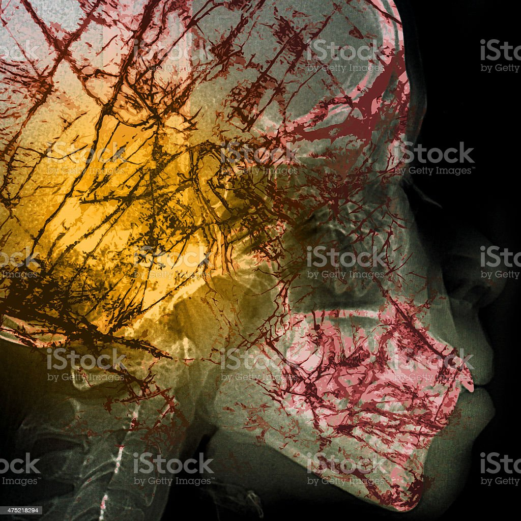 pathogen abstract with x-ray film background on double exposure stock photo