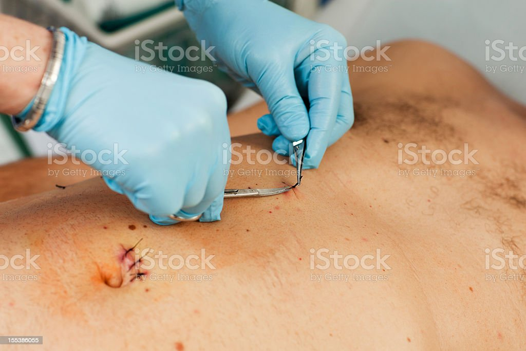 Patient after laparoscopic surgery...gall bladder operation royalty-free stock photo