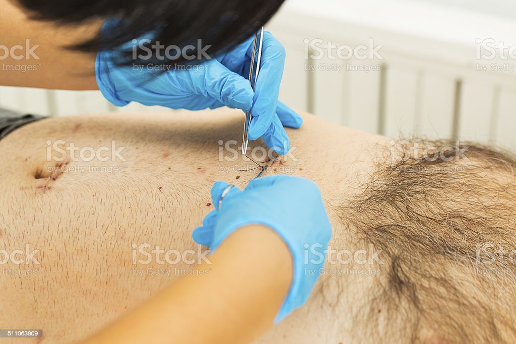 Patient after laparoscopic surgery...gall bladder operation stock photo