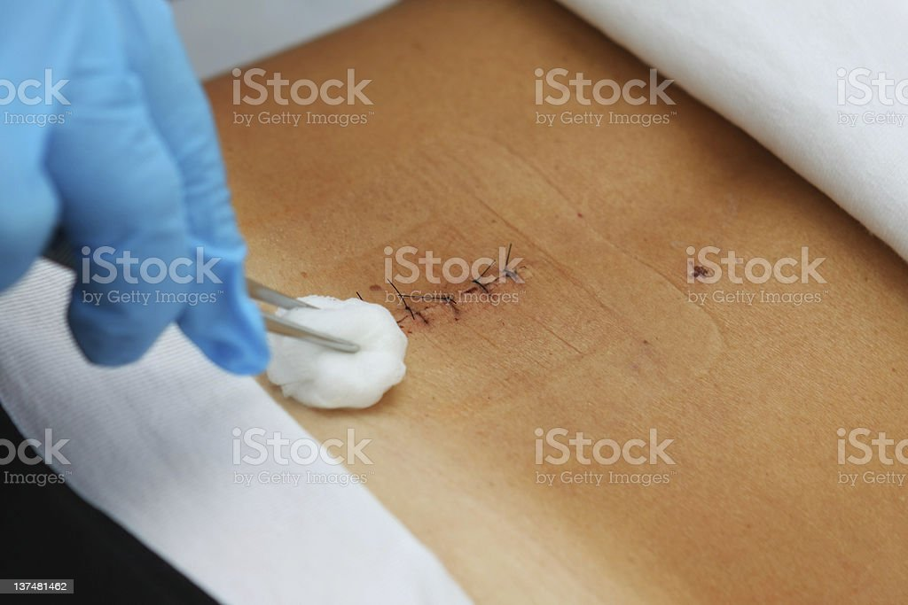 Patient after spinal disc operation...nurse removing stitches stock photo