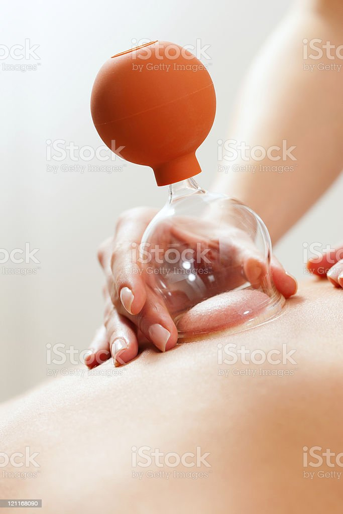 Patient at the physiotherapy - cupping royalty-free stock photo