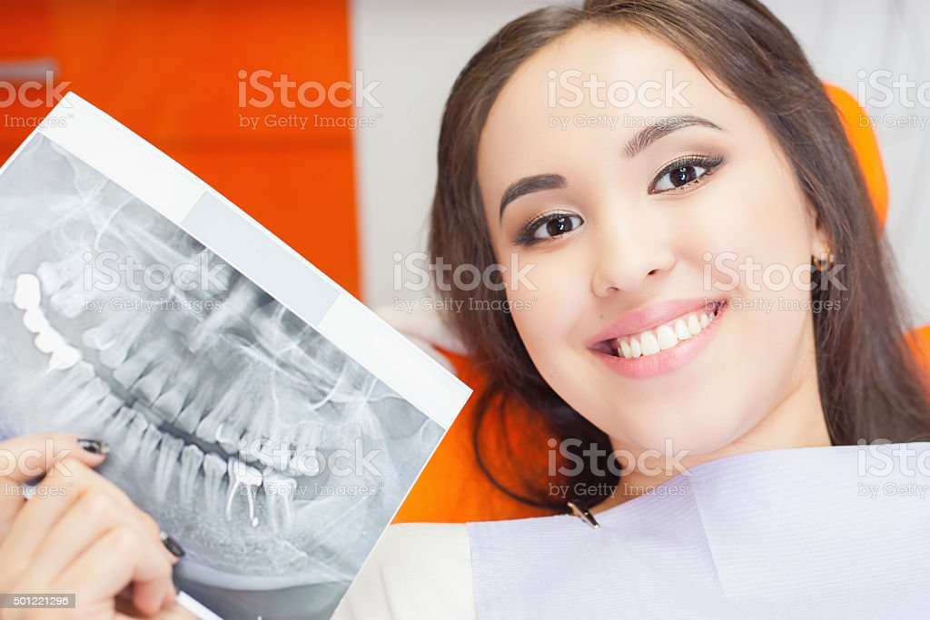 Patient beautiful girl holding x-ray picture of her teeth stock photo