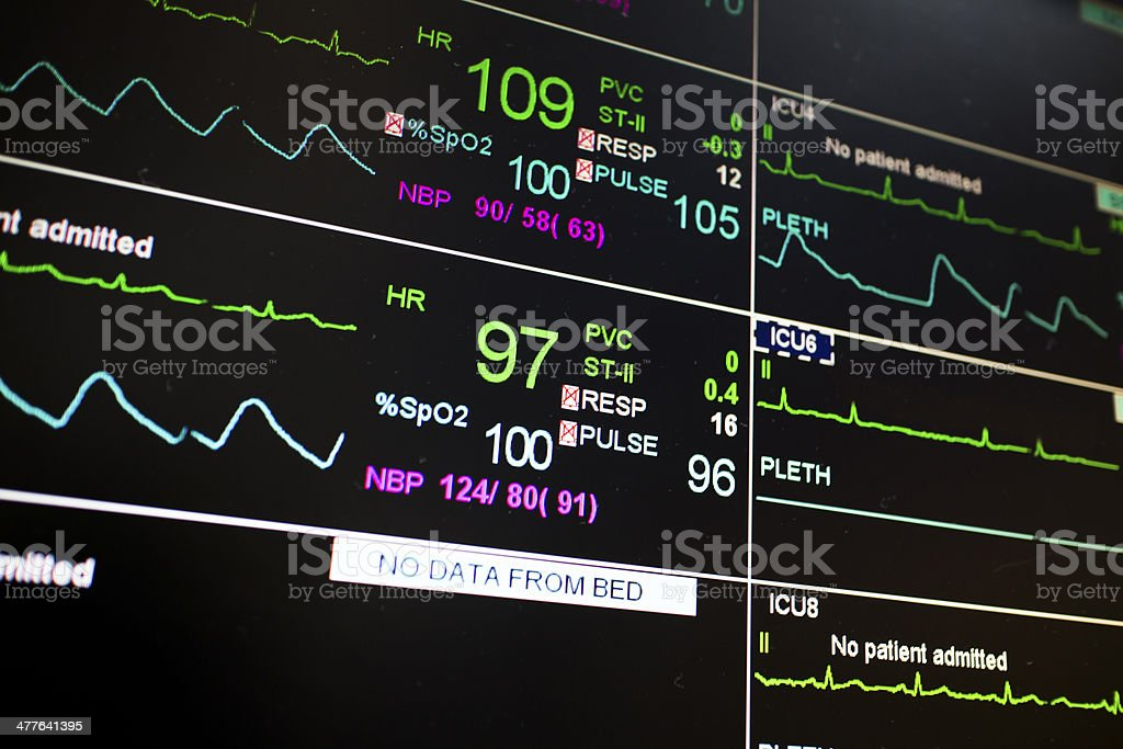 Patient monitor icu pulse royalty-free stock photo