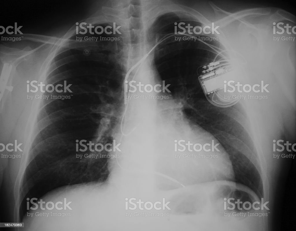 patient that have a pacemaker stock photo
