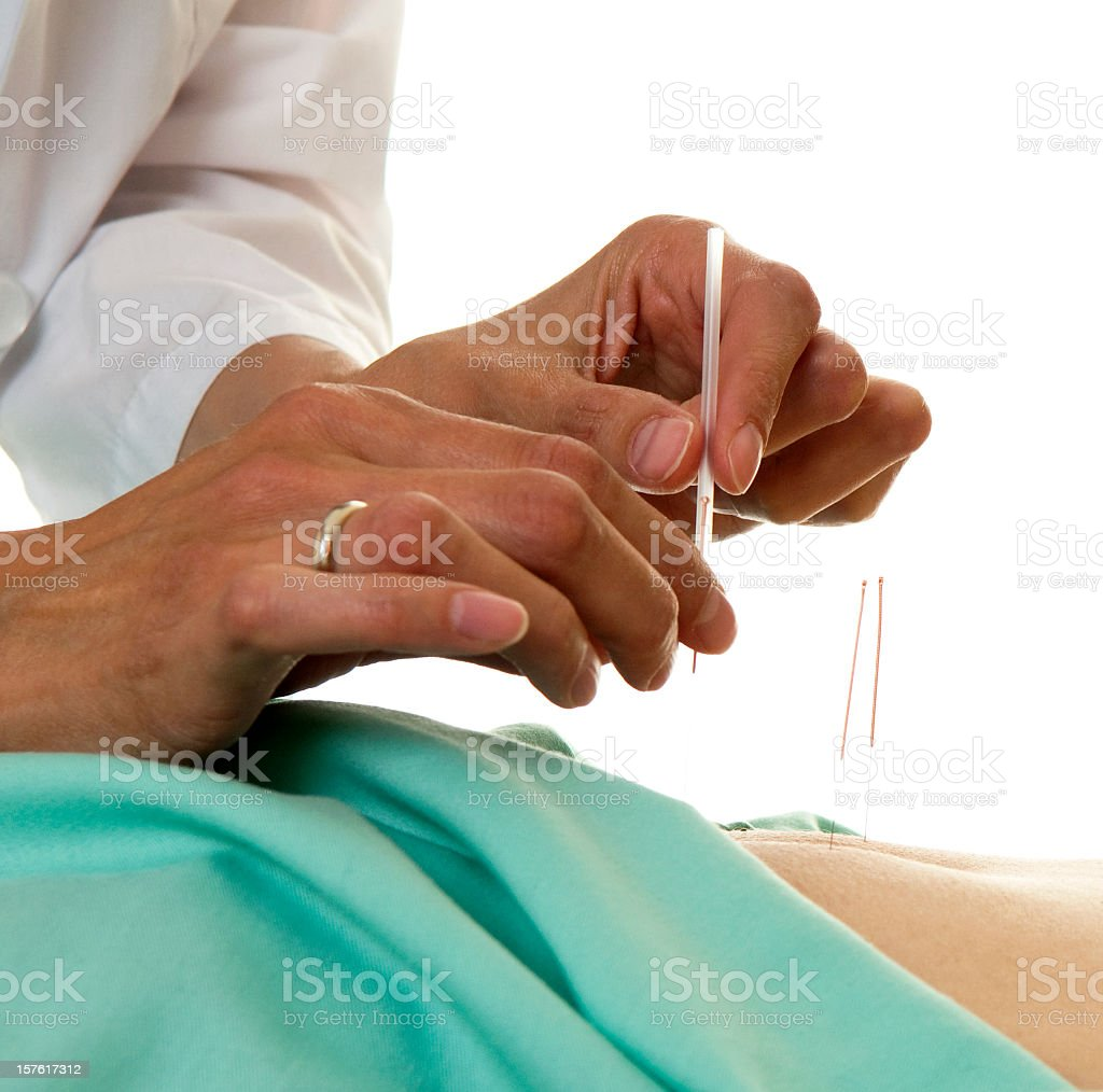 A patient trying a form of alternative medicine royalty-free stock photo