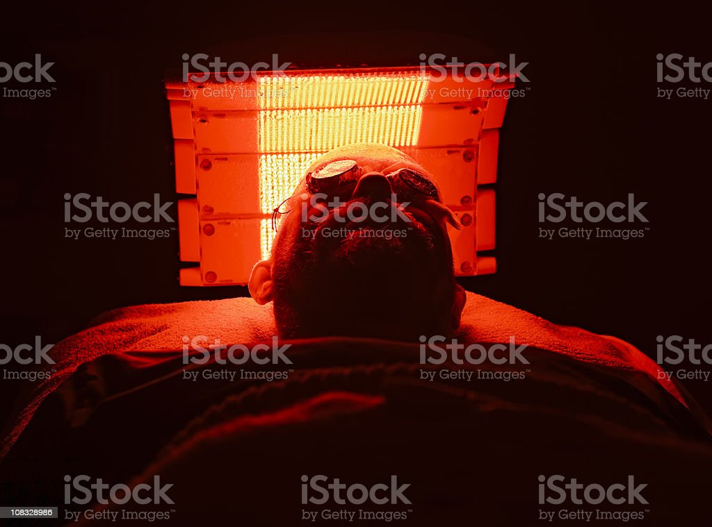 Patient undergoing Photodynamic Therapy for basal cell carcinomas stock photo