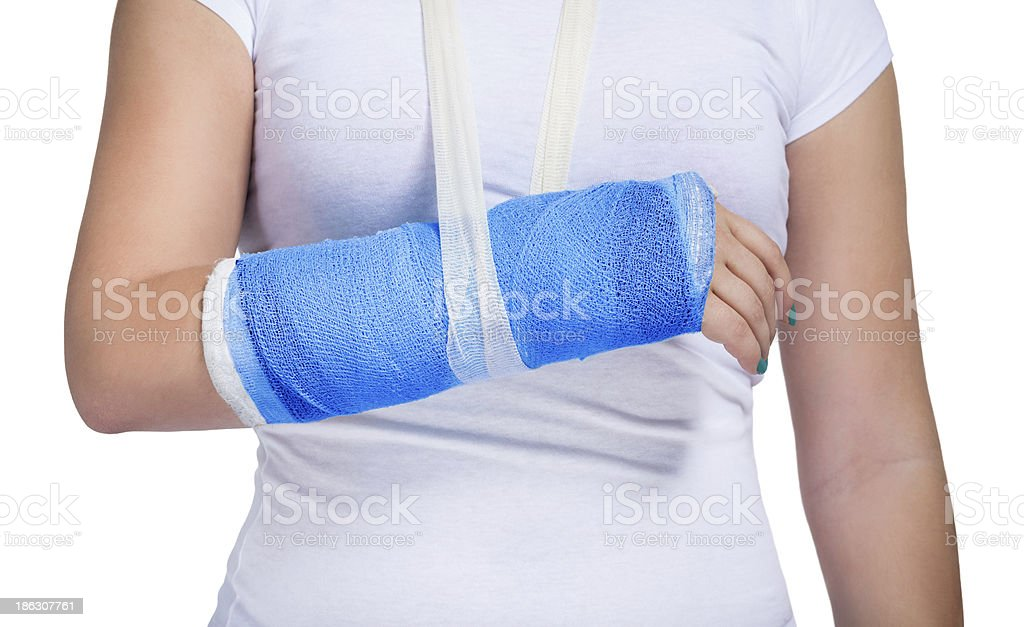 Patient with a cast on arm stock photo
