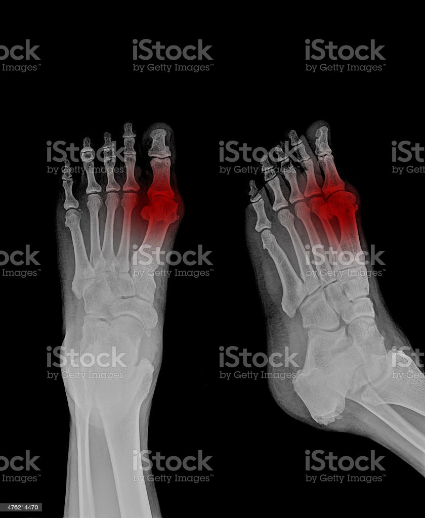 patient x-ray stock photo