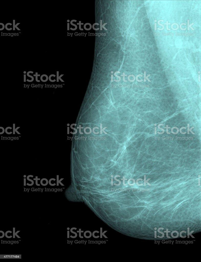 patient x-ray stock photo