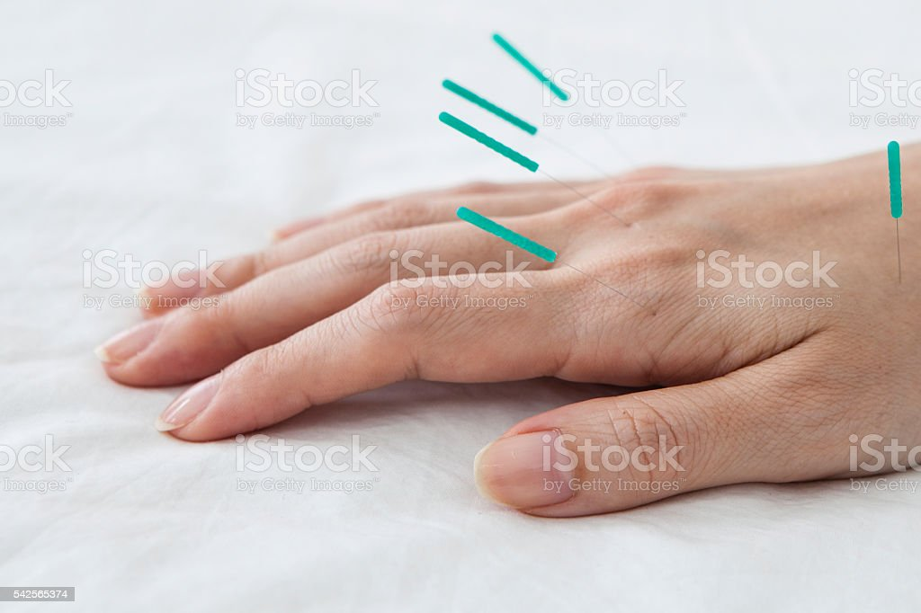 Patients receiving acupuncture in hand for the sake of health