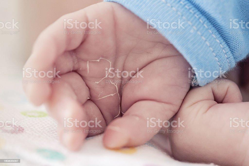 Peeling skin in newborns stock photo