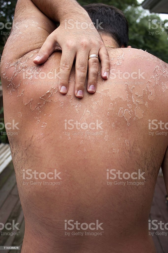 Peeling Sunburned Back royalty-free stock photo