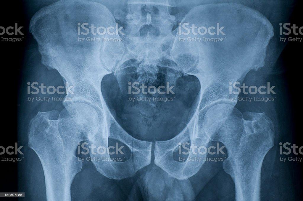 pelvis stock photo