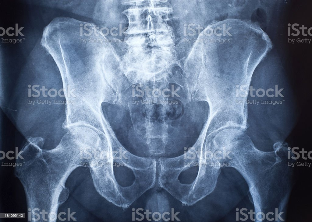 Pelvis x-ray stock photo