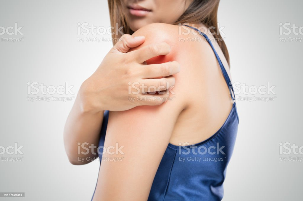 People scratch the itch with hand, Upper arm, itching, Healthcare And Medicine, Beautiful girl woman with skin problem concept stock photo