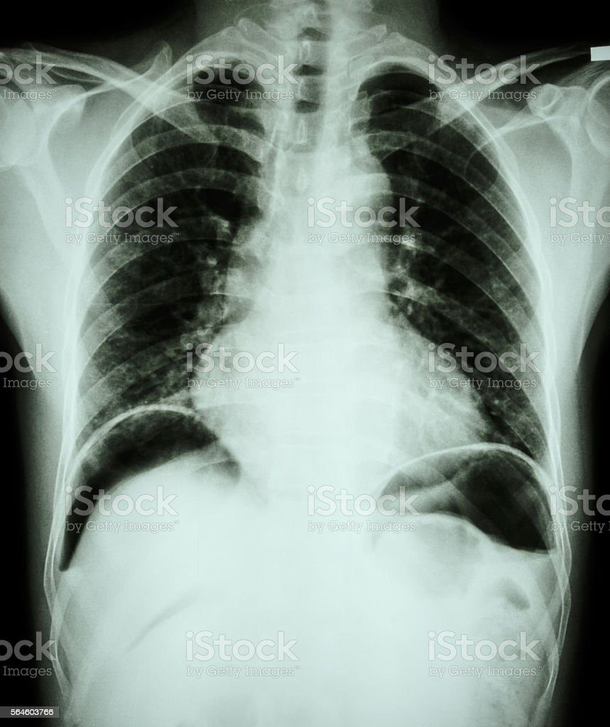 Peptic ulcer perforate stock photo