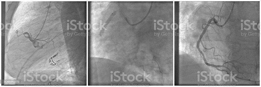 PCI – percutaneous coronary intervention stock photo