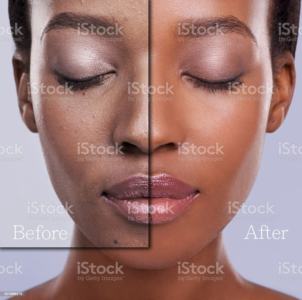 Before and after concept photo of a young woman's...