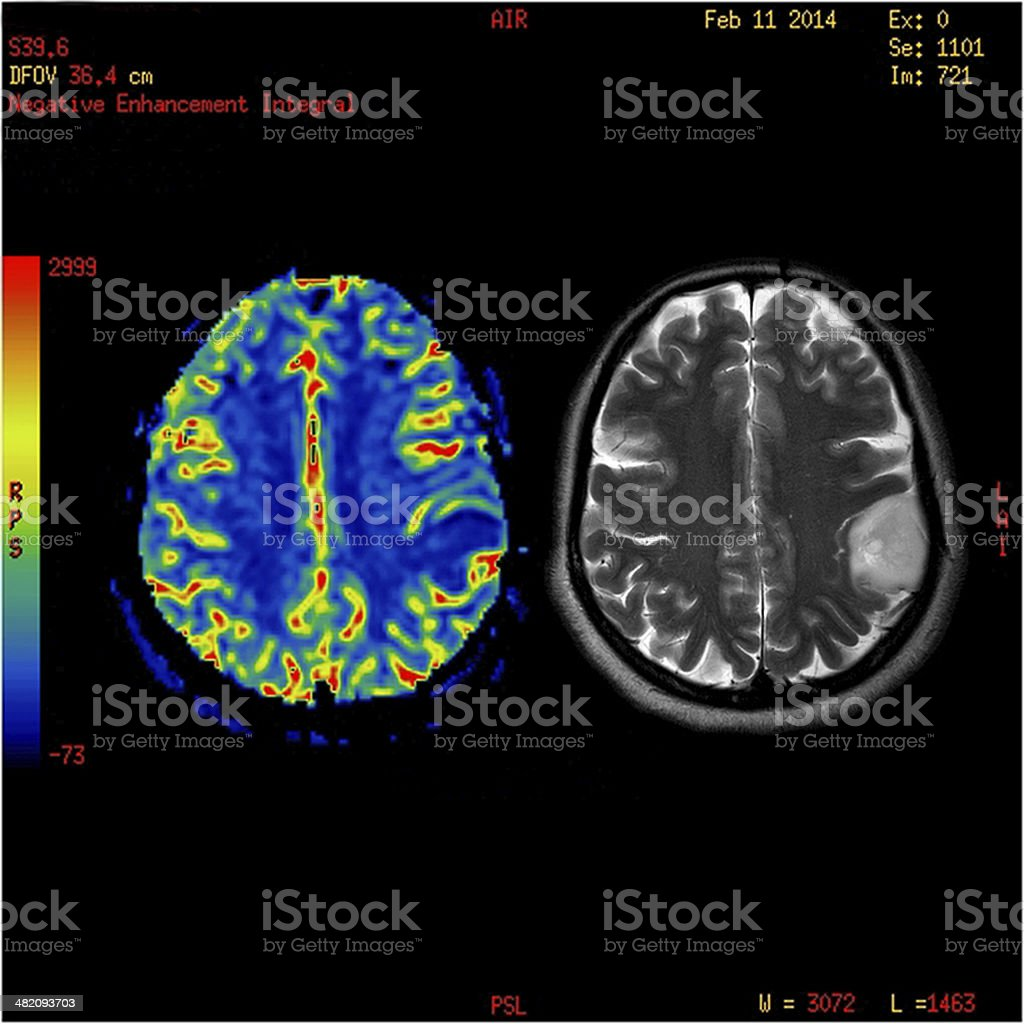 Perfusion MRI imaging of a benign brain tumor stock photo