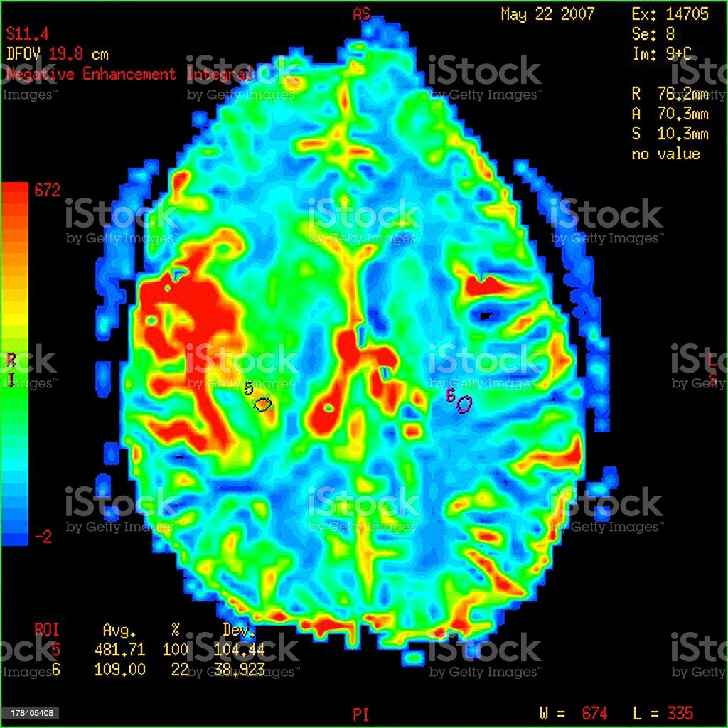 Perfusion MRI imaging of a malignant brain tumor stock photo