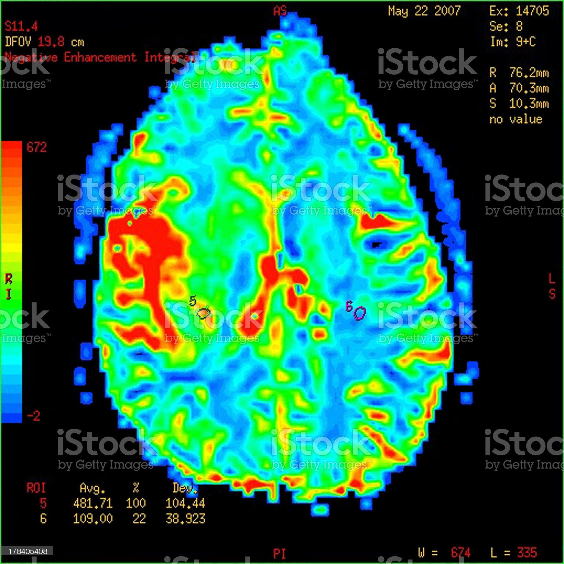 Perfusion MRI imaging of a malignant brain tumor royalty-free stock photo