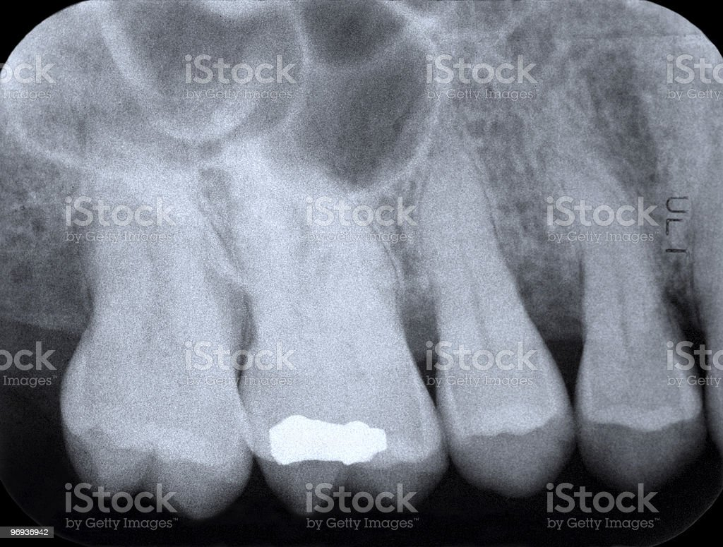 Periodontal X-ray stock photo