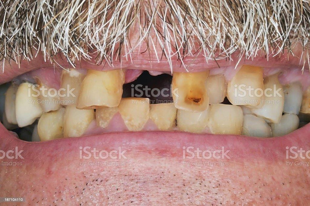 Periodontitis stock photo