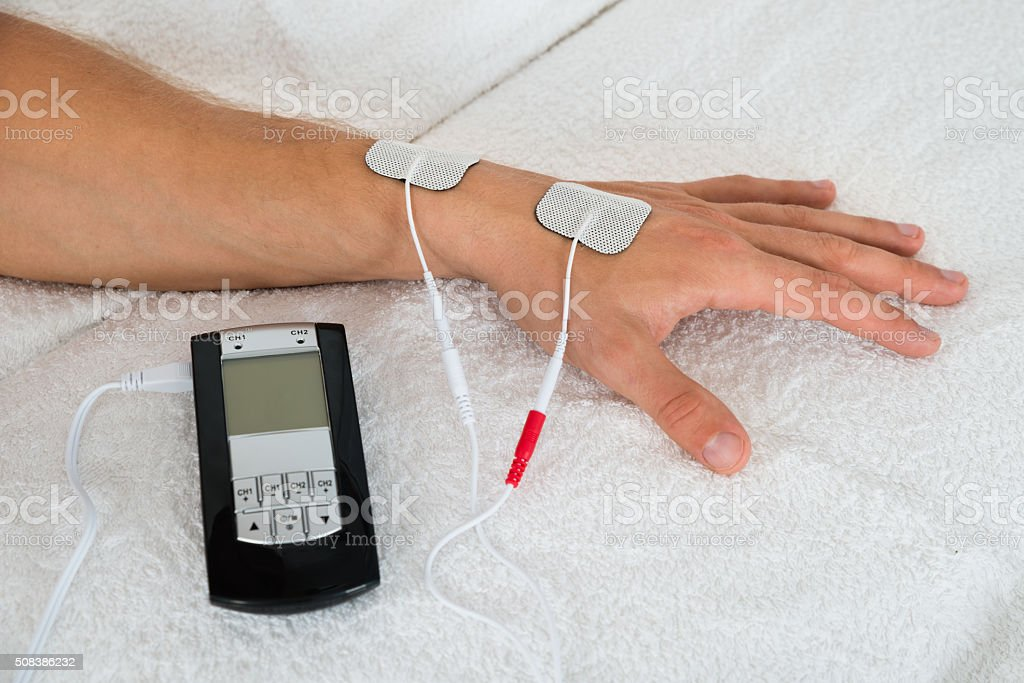 Person Hand With Electrodes stock photo