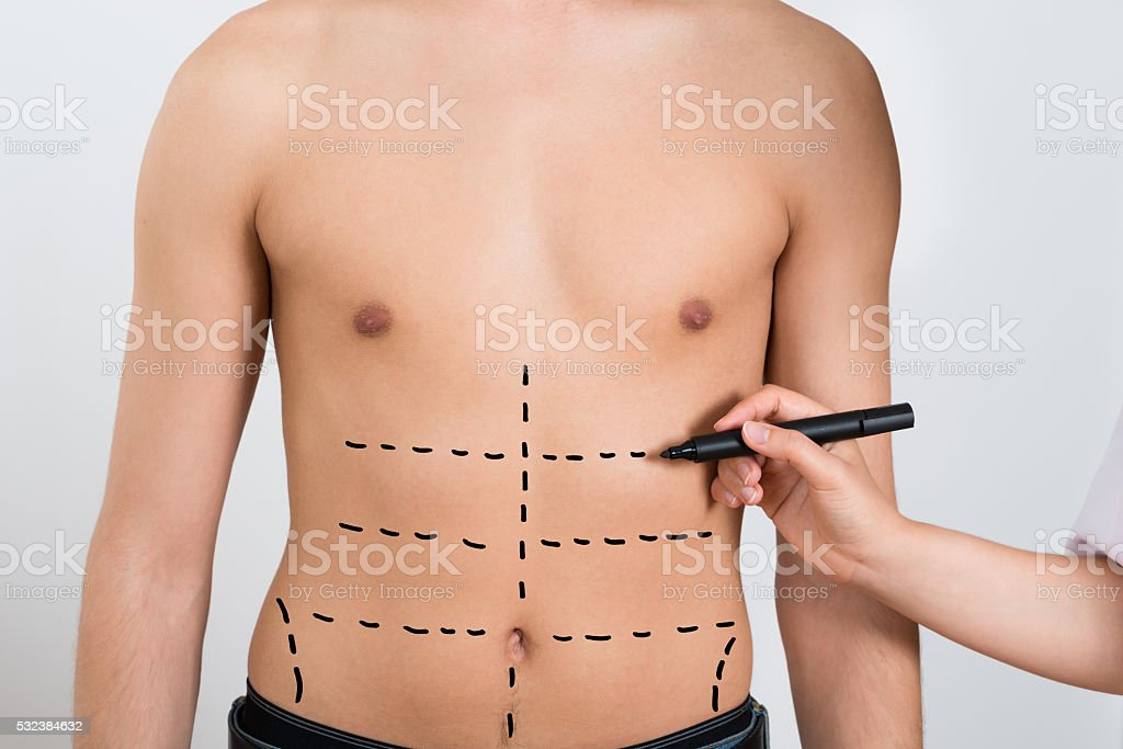 Person Hands Drawing Correction Lines On Abdomen stock photo