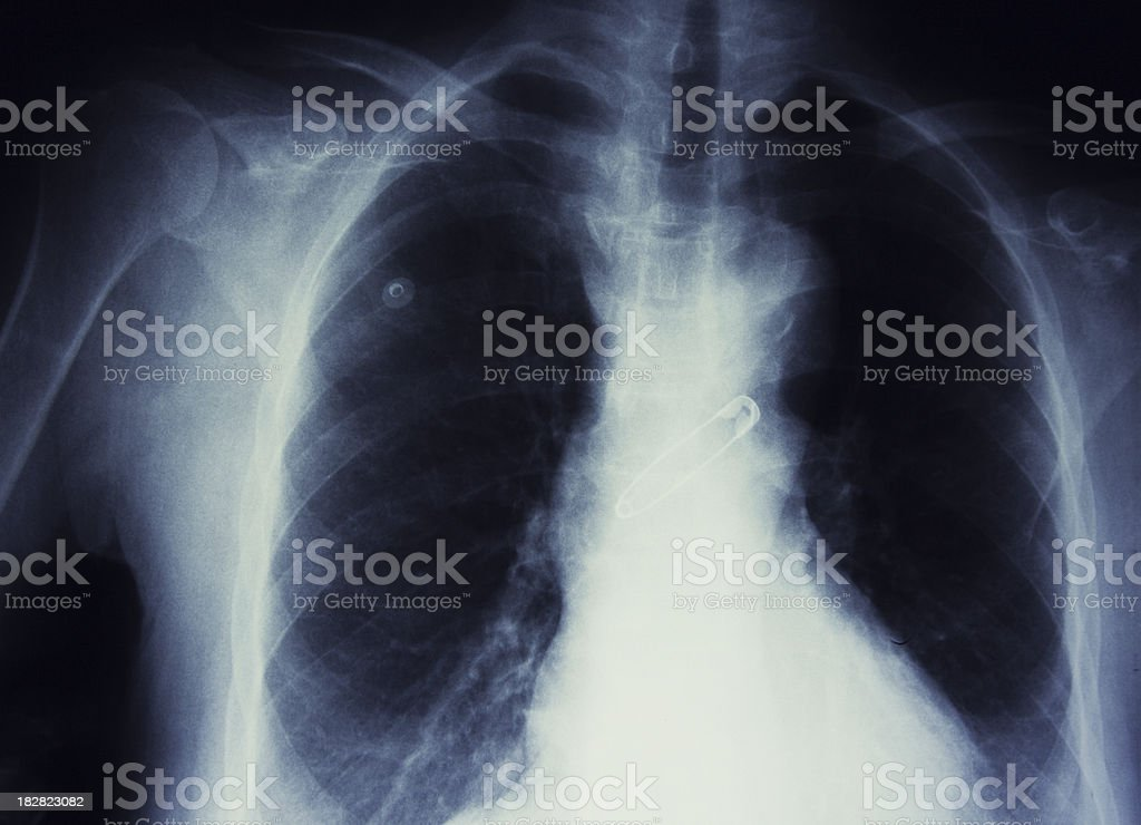 person who swallowed  hooked needle stock photo