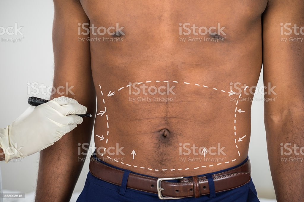 Person's Hand Drawing Correction Lines On Abdomen Of Man stock photo