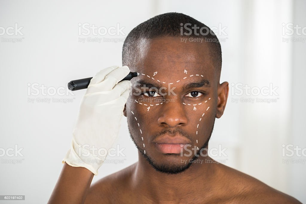 Person's Hand Drawing Correction Lines On Man's Face stock photo