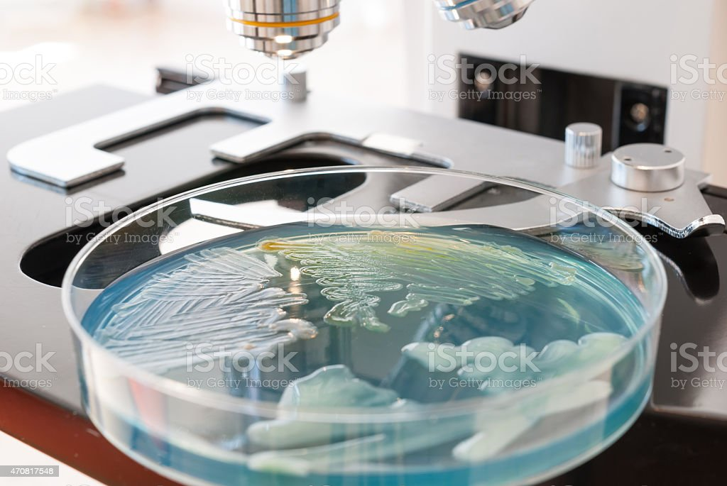 Petri dish infected with bacteria and laboratory microscope. stock photo
