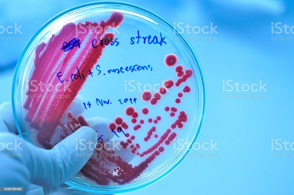 Petri dish with red colony of bacteria stock photo