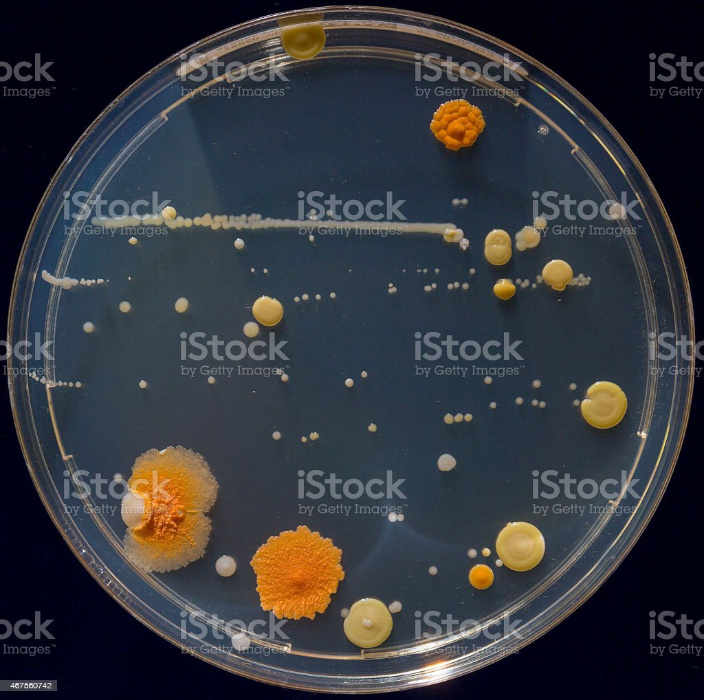 Petri dishes with colonies of pathogenic organisms stock photo