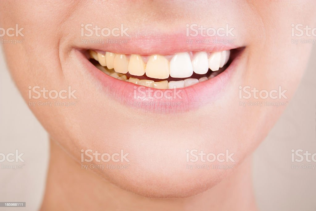 Before and after teeth whitening. stock photo