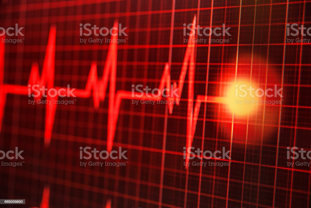 Photo taken of a heartbeat on the monitor stock photo