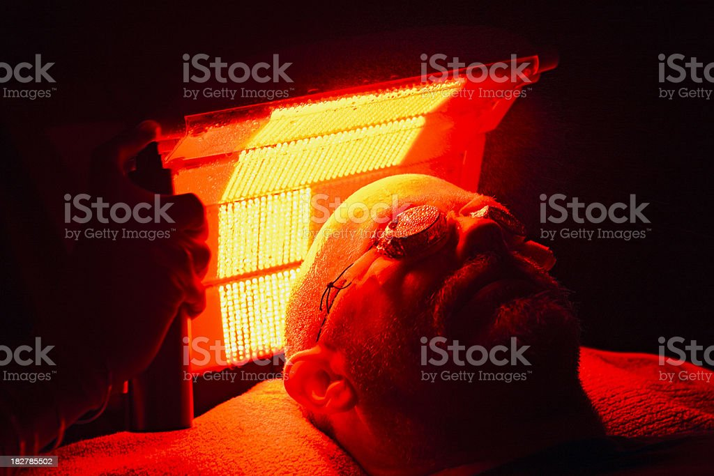 Photodynamic Therapy treatment for skin cancer stock photo
