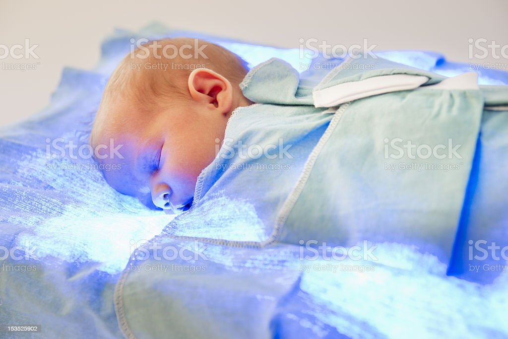 Phototherapy stock photo