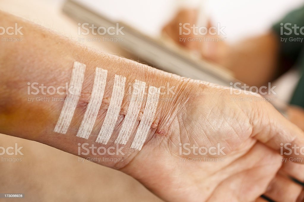 Physical therapy after wrist surgery stock photo