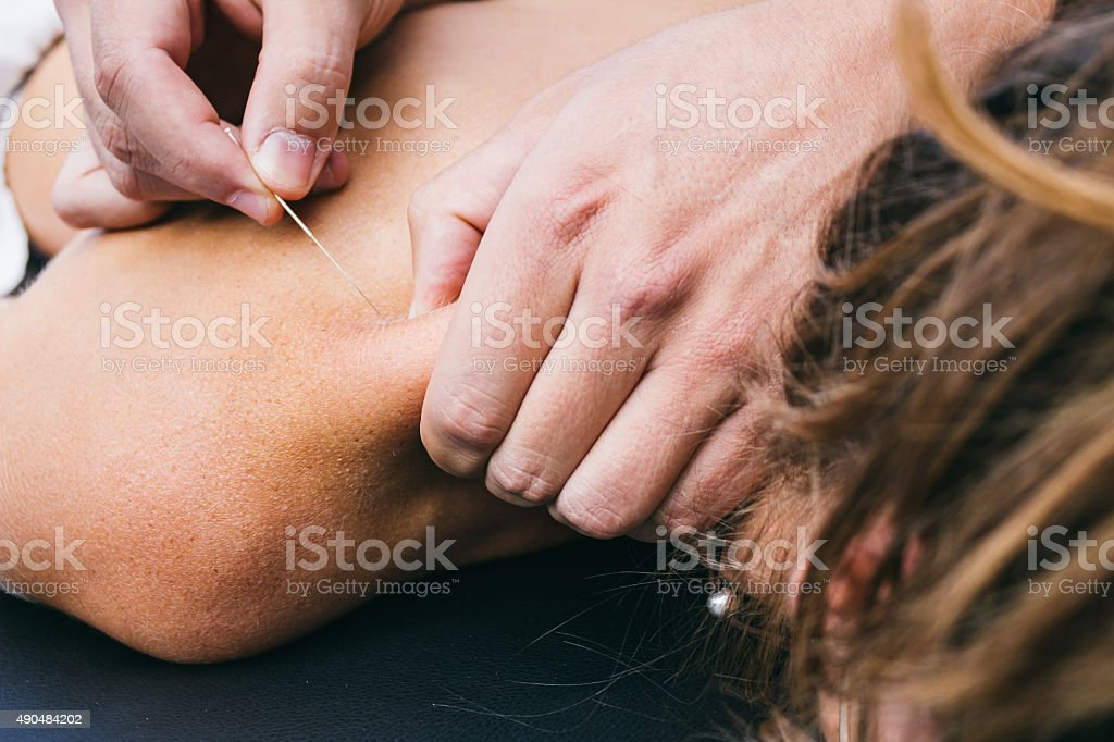 Physiotherapist doing a dry puncture stock photo