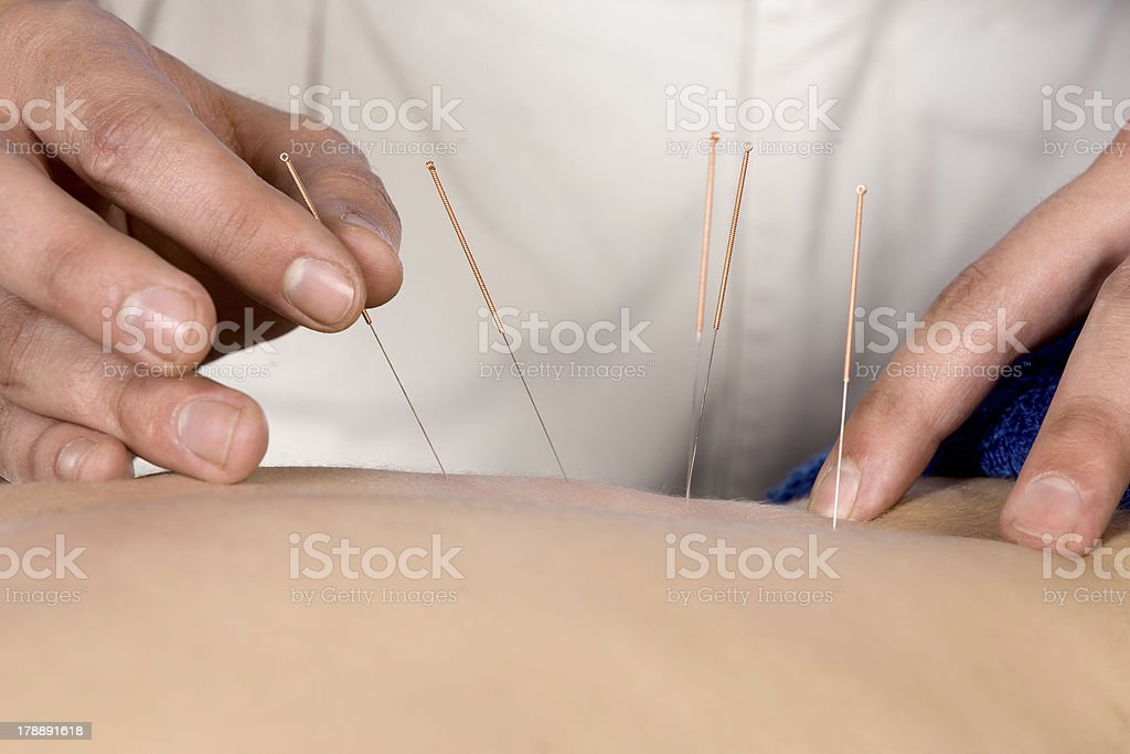Physiotherapist doing accupuncture royalty-free stock photo