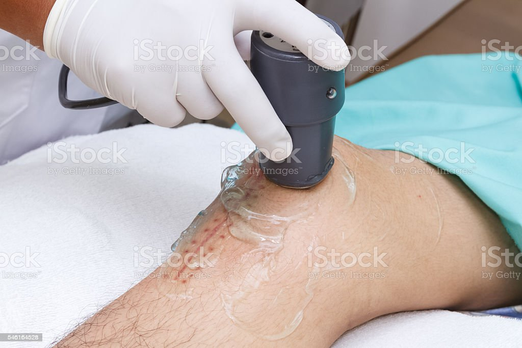 Physiotherapist is applying ultrasound therapy on the knee stock photo