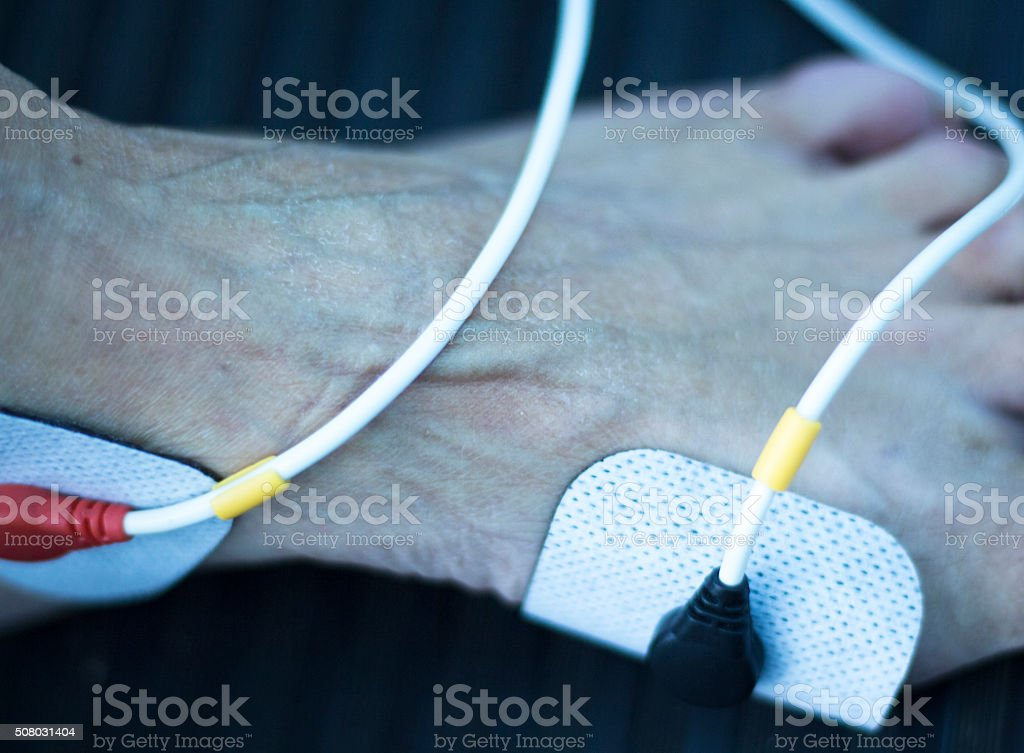 Physiotherapy clinic patient in rehabilitation stock photo