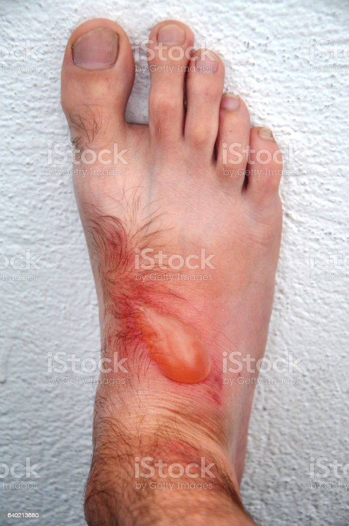 Phytophotodermatitis, cutaneous phototoxic skin inflammatory stock photo