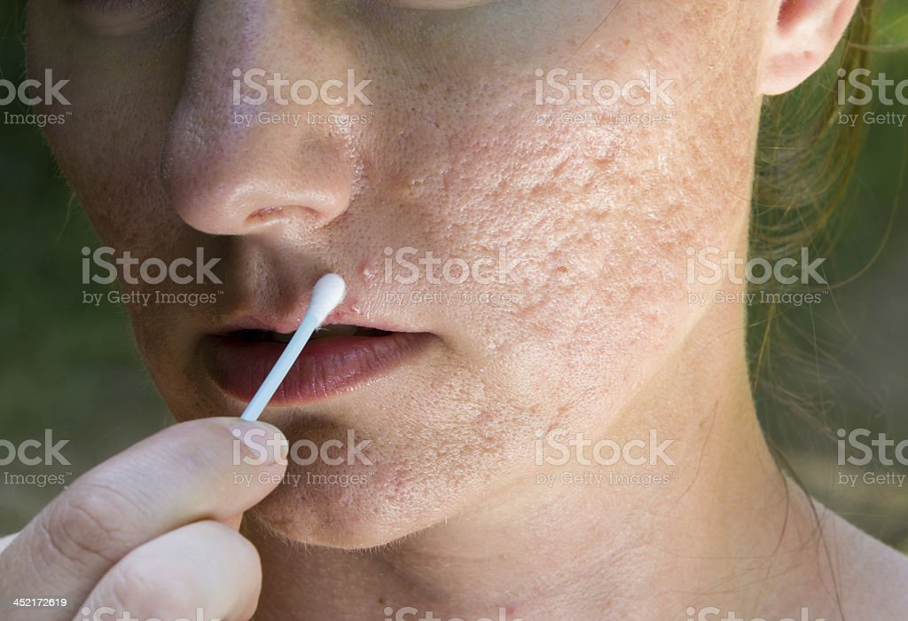 Pimple and acne scars royalty-free stock photo