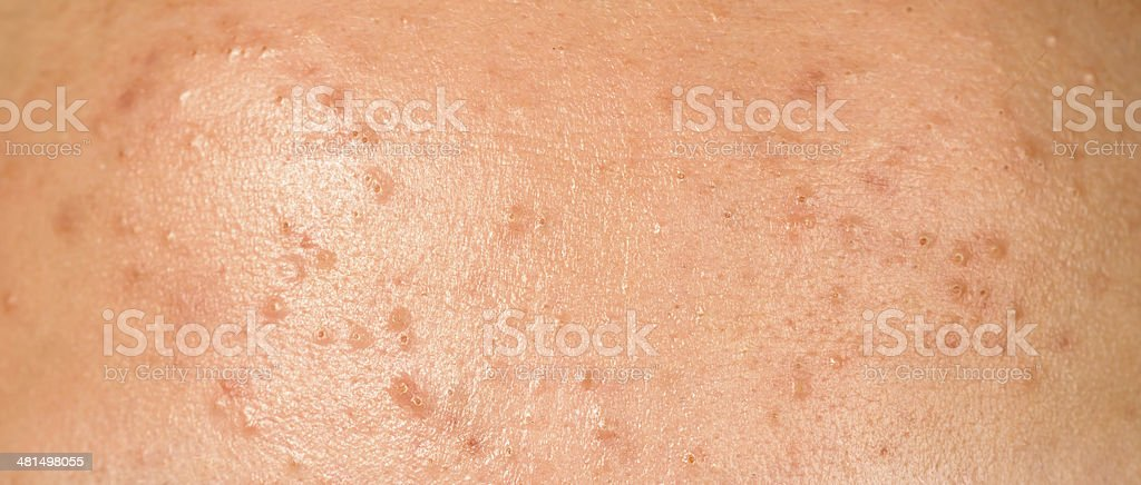pimples royalty-free stock photo